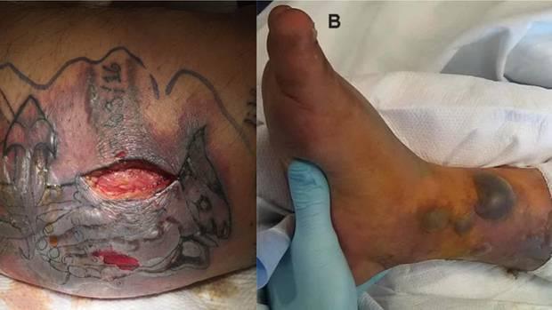 Nur fünf Tage nachdem sich der 31-Jährige das Tattoo hatte stechen lassen, ging er im Meer baden. Dabei infizierte er sich mit Bakterien. Die Bilder entstanden zwei Wochen nach der Einlieferung.