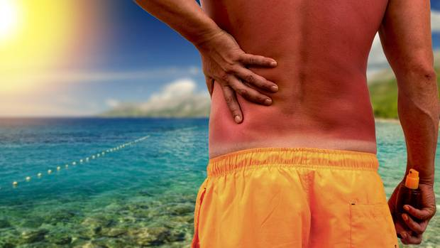 Mann am Meer mit Sonnenbrand