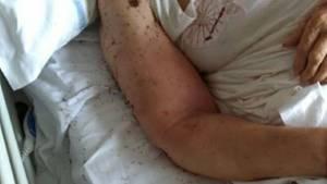 Kribbeln im Krankenzimmer: Ameisen überrennen ein Patientenbett in einer Klinik in Neapel