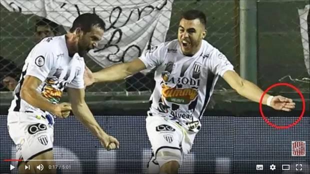 Ein Fußballer aus Argentinien mit einer Nadel in der Hand – blöd nur, dass er gerade spielt.