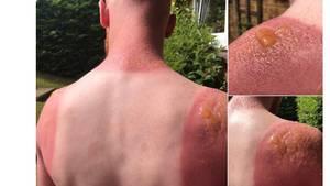 Das Ergebnis eines Arbeitstags im Freien: Die verbrannte Haut wirft Blasen