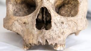 nachrichten deutschland skelett