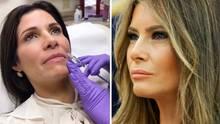 Melania Trump: Claudia Sierra lässt sich operieren, um wie First Lady auszusehen