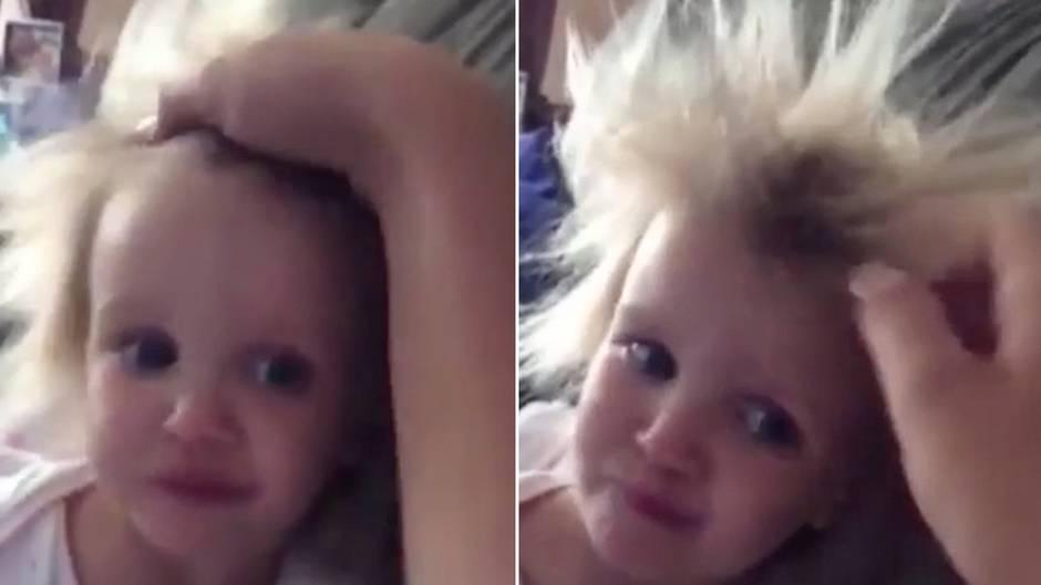 Seltener Gendefekt: Struwwelpeter-Syndrom - die Haare dieses Mädchens kann kein Kamm bezwingen