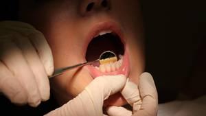 Der Zahnarzt wurde zu einer Bewährungsstrafe verurteilt (Symbolbild)