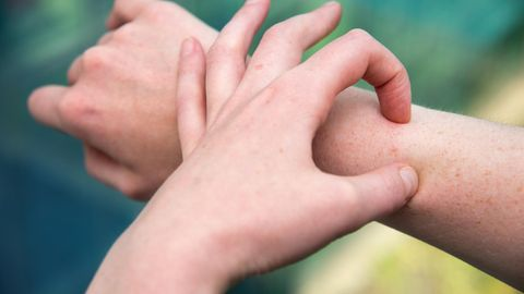 Neurodermitis: Eine kratzt sich am Unterarm