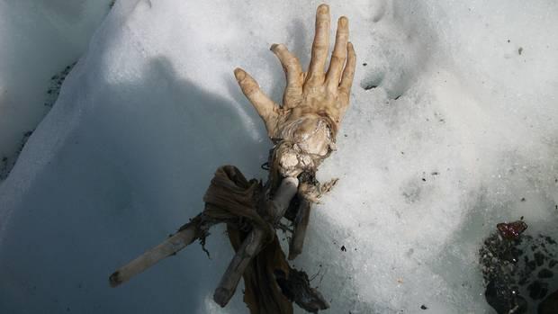 Diese Hand könnte einem Opfer eines der beiden Air India Flugzeugabstürze in dem Gebiet von 1950 und 1966 gehören