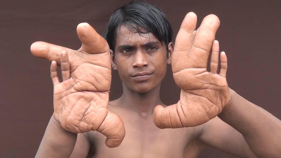 Mysteriöse Krankheit: Der Junge mit den Riesenhänden