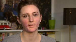 Brandopfer Vivian Hagedorn zwei Jahre nach dem Unglück.