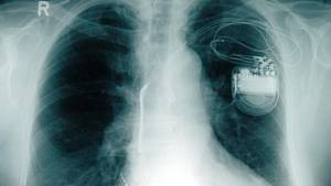 Hunderttausende Herzschrittmacher brauchen ein Sicherheitsupdate
