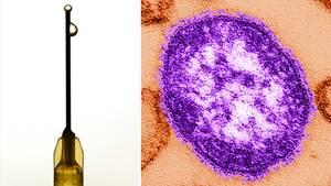 Masern schwächen das Immunsystem und können zu Folgekrankheiten führen