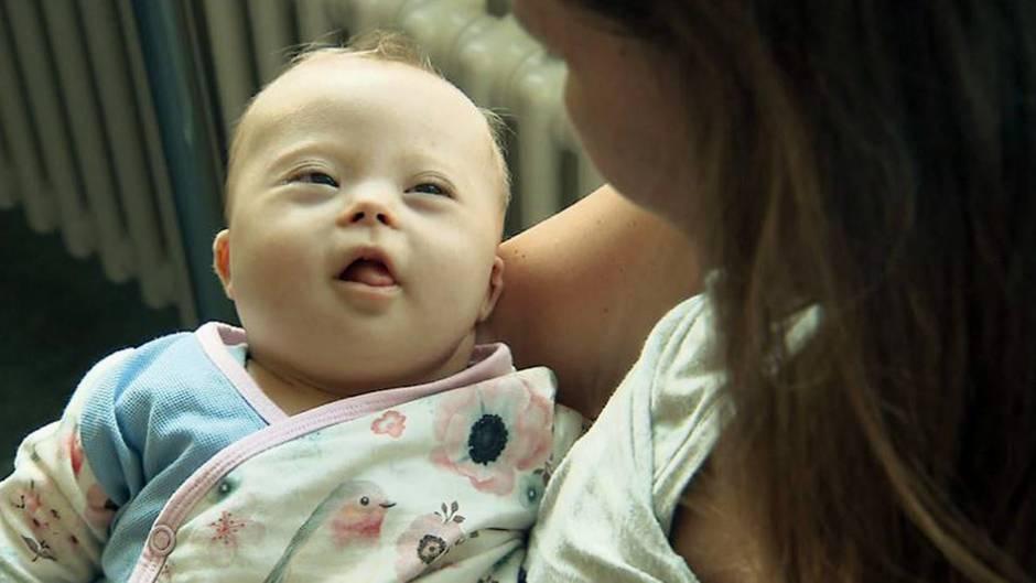 Die fünf Monate alte Olivia kam mit Down Syndrom zur Welt.