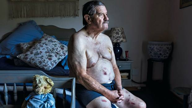 Robert Lynn wurde auf seinem Gut mit einem Gasbrenner gefoltert