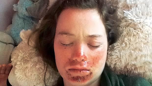 Nach einer Klassenreise ist Ninas Haut stark entzündet