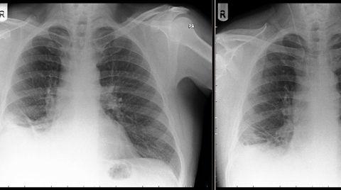 playmobil Lungenkrebs