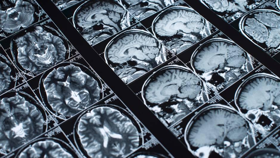 MRT-Aufnahmen des Schädels: Bloggerin Belle Gibson gab vor, an einem Hirntumor erkrankt zu sein (Symbolbild)