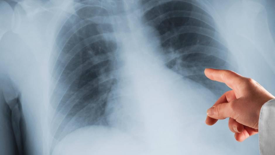 Röntgen-Aufnahme der Lunge