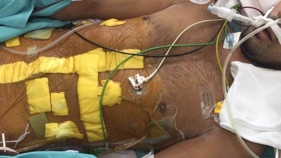 Elias im Krankenhaus in Thailand