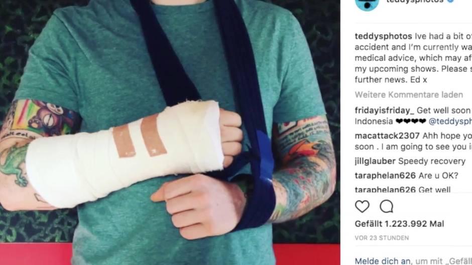 Konzerte abgesagt: Ed Sheeran bricht sich beide Arme bei schwerem Verkehrsunfall