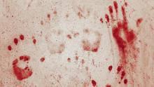 Acht vermeintliche Vampire sind in den letzten Wochen in Malawi umgebracht worden