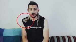Jordanien: Giftschlange beißt während Live-Interview zu