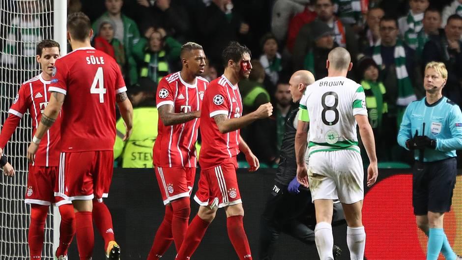 Javi Martinez (M.) holte sich bei seinem Kopfball zum 2:1 für die Bayern gegen Celtic Glasgow eine Platzwunde