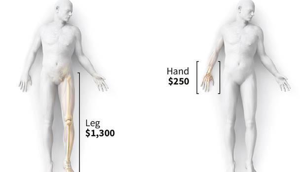 Ein komplettes Bein bringt 1300 Dollar, ein Hand nur 250.