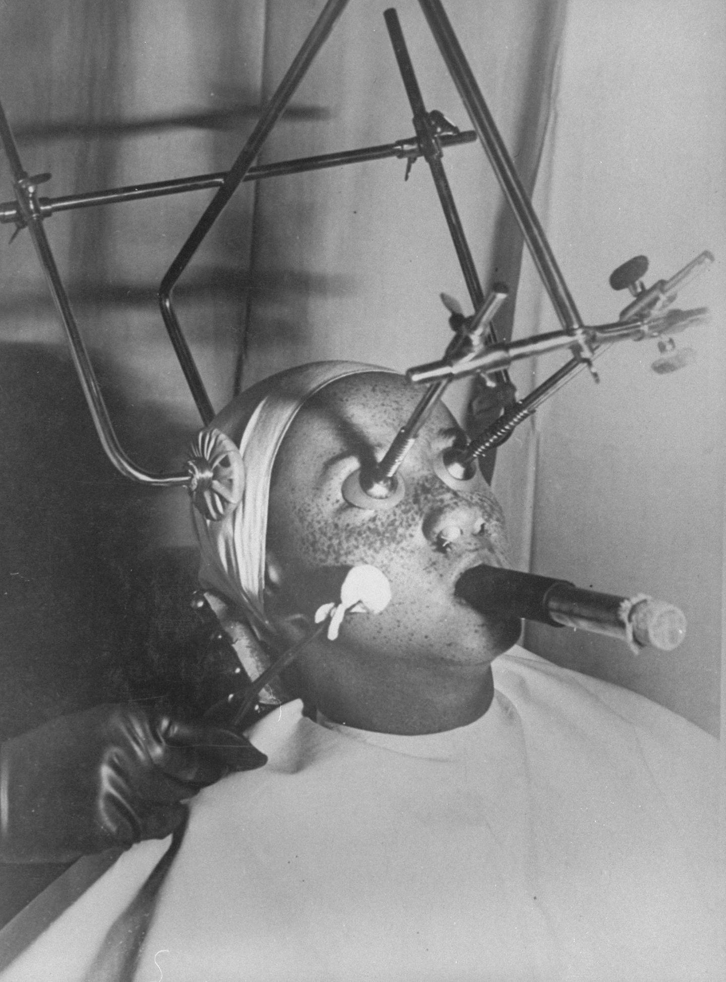 Sommersprossen gelten heute als niedlich. Um 1930 nahmen Frauen jedoch einiges auf sich, um die Punkte im Gesichts loszuwerden. Das Bild zeigt eine Apparatur zum Entfernen der bräunlichen Flecken.    Patienten bekommen im Vorfeld der Behandlung einen luftdichten Augenschutz aufgesetzt, die Nasenlöcher werden abgedichtet und die Patienten müssen durch eine speziellen Schlauch atmen. Dann beginnt die eigentliche Behandlung.