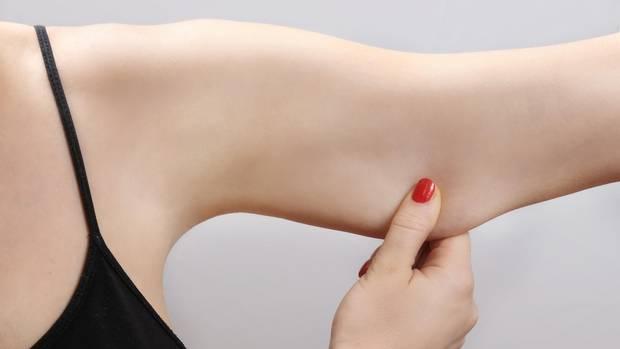 Ist die Muskulatur der Oberarme schwach ausgeprägt, können sich unschöne Hautlappen bilden