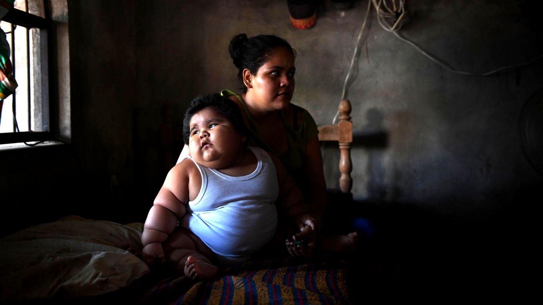 Baby in Mexiko bringt 28 Kilo auf die Waage