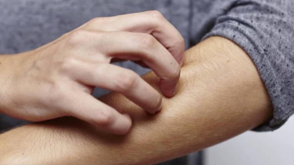 Hauterkrankung: Krätze breitet sich wieder aus - Gehören Sie zur Risikogruppe?
