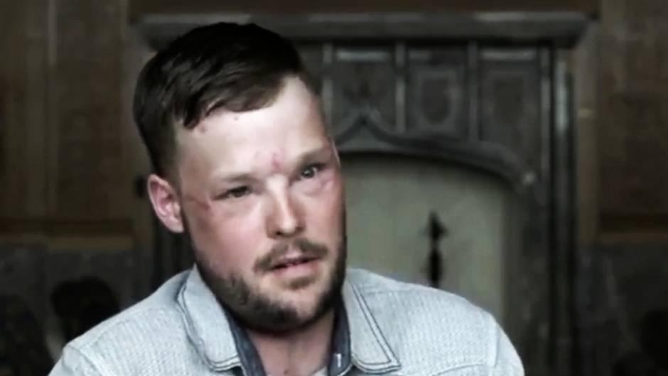 Zweite Chance : Transplantation: Dieser Mann bekommt ein neues Gesicht
