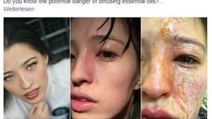 Gesicht verätzt - Britin warnt vor ätherischen Ölen