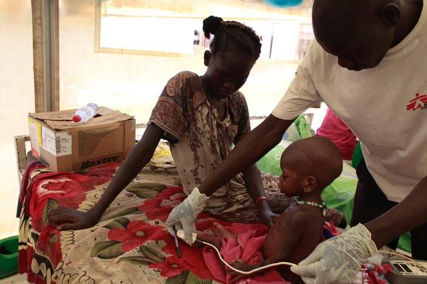 """Ein unterernährtes Kind wird von einem Mitarbeiter der """"Ärzte ohne Grenzen"""" untersucht"""