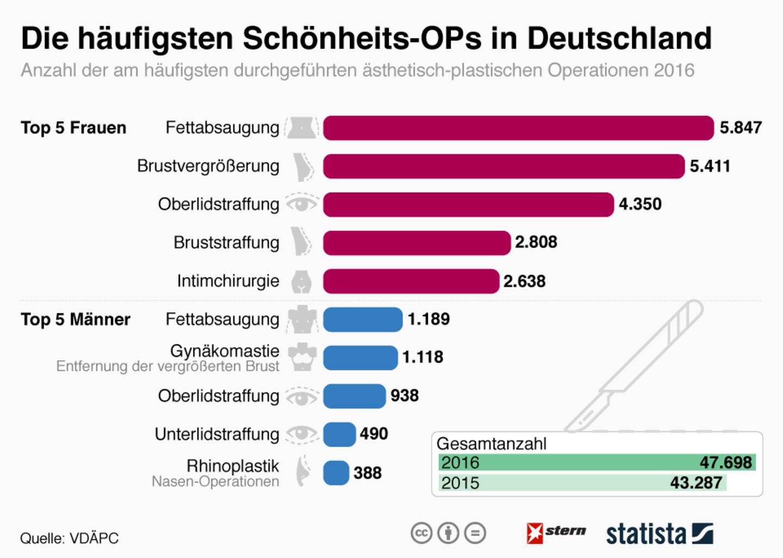 Schönheits-OPs: An was die Deutschen am häufigsten rumschnippeln lassen
