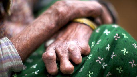 Fraru mit Lepra Händen
