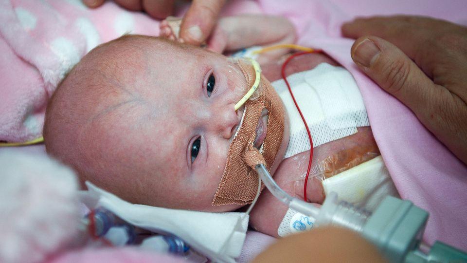 Ein Baby liegt mit Schläuchen in Mund und Nase in eine rosafarbene Decke gehüllt. Die Hände ihrer Eltern streicheln es.