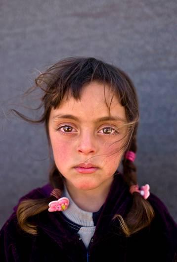 UNICEF Siegerbild: Zahras Gesicht