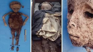 Bilder der Kindermumie