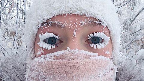 In Russlands Teilrepublik Jakutien herrscht Frost: Diese Frau hat nur 20 Minuten an der frischen Luft verbracht.