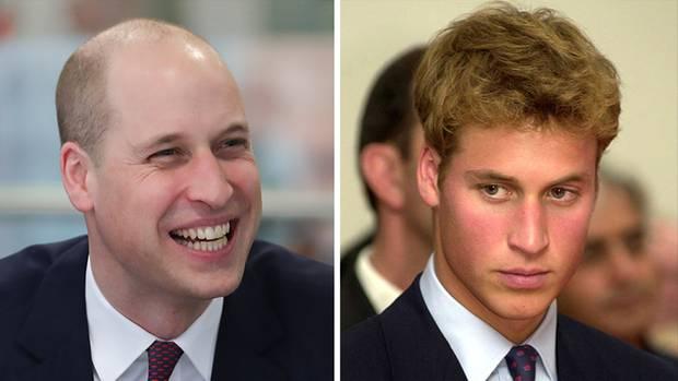 Prinz William hat kaum noch Haare