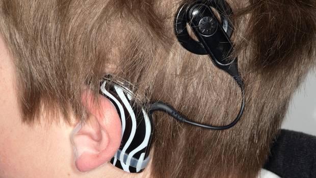 Das Cochlea-Implantat (CI) ist eine Hörprothese, die den Hörnerv elektrisch reizt. Es besteht aus zwei Teilen: dem Sprachprozessor, der wie ein Hörgerät hinter dem Ohr getragen wird, und dem Implantat mit Empfängerspule und einer Elektrode, die zur Hörschnecke ins Innenohr führt. Die Einsetzung erfolgt in Vollnarkose, dabei wird eine Vertiefung in den Schädelknochen gefräst. Nach der OP ist meist ein jahrelanges Training in einer sprechenden und hörenden Umgebung notwendig, um Hören zu lernen