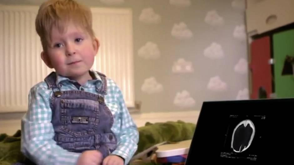 Noah Wall: Nur zwei Prozent Hirnmasse bei der Geburt: Dieser Junge trotzt allen ärztlichen Prognosen
