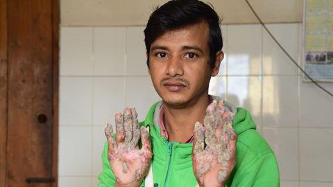 Abul Bajandar aus Bangladesch