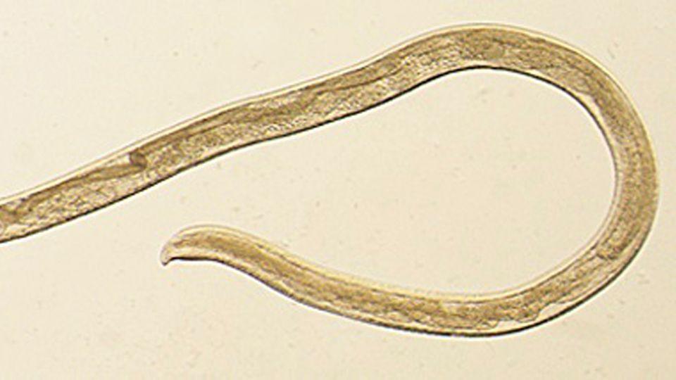 Der Thelazia gulosa kommt überlicherweise nur bei Tieren vor