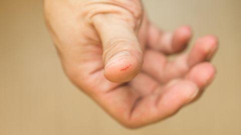 Eine kleine Schnittwunde am Finger