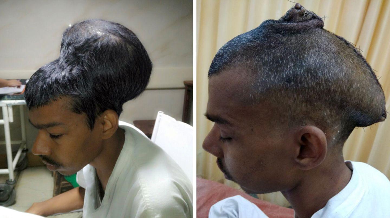 Im Nair Hospital in Indien wurde diesem 31-Jährigen ein fast zwei Kilogramm schwerer Hirntumor entfernt (r. nach der OP)