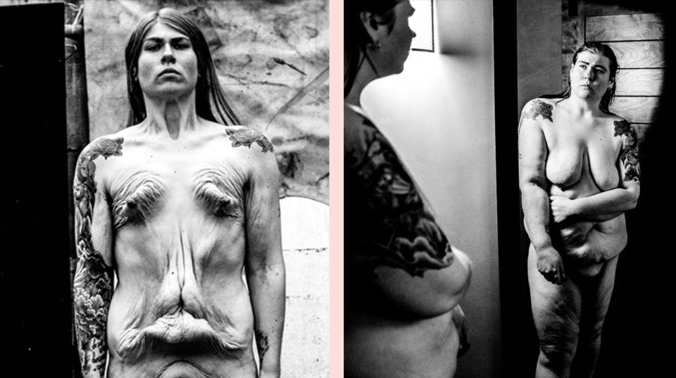 """""""Self Untitled"""": Die nackte Wahrheit: Künstlerin zeigt, wie ihr Körper mit einem Magenbypass aussieht"""