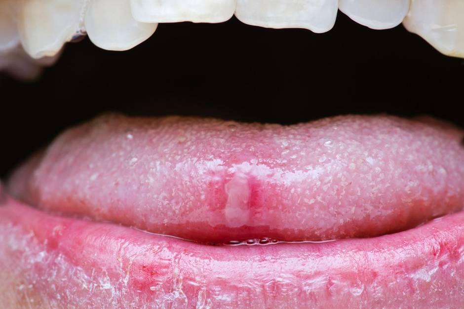 Eine Aphthe an der Zunge