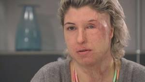 Vanessa Münstermann (29) will sich trotz ihrer Entstellung durch den Säureangriff nicht verstecken.